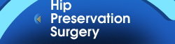 Hip Preservation Surgery - Hip & Fracture Institute Nashville